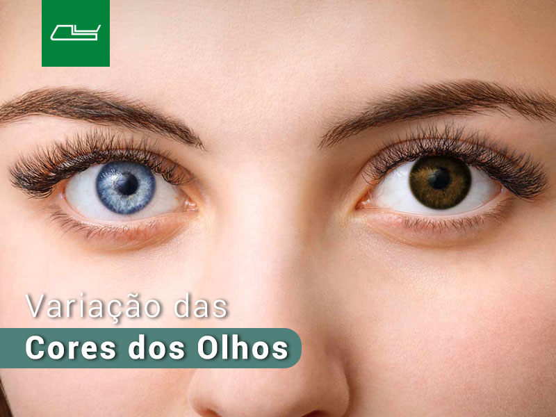 Read more about the article HETEROCROMIA: a condição dos olhos coloridos.
