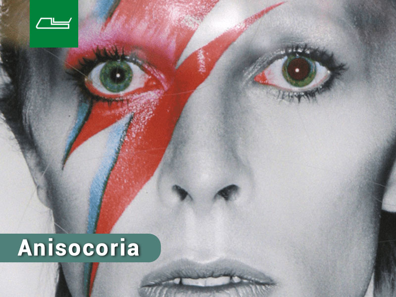 Read more about the article Os Olhos de David Bowie e a Anisocoria.